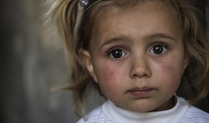 bambini-siria-fidem-guerra